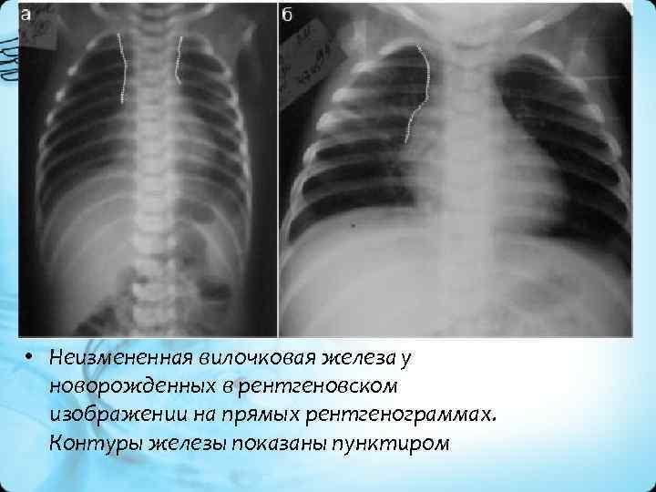 • Неизмененная вилочковая железа у новорожденных в рентгеновском изображении на прямых рентгенограммах. Контуры