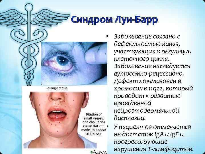 Синдром Луи-Барр • Заболевание связано с дефектностью киназ, участвующих в регуляции клеточного цикла. Заболевание