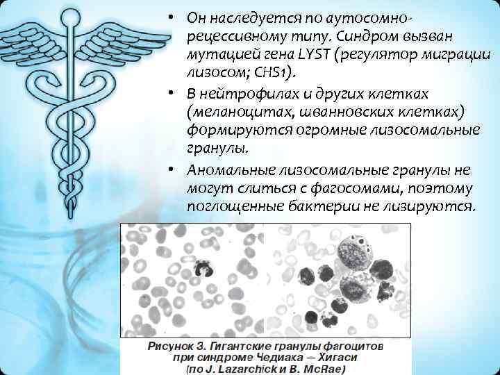 • Он наследуется по аутосомно рецессивному типу. Синдром вызван мутацией гена LYST (регулятор