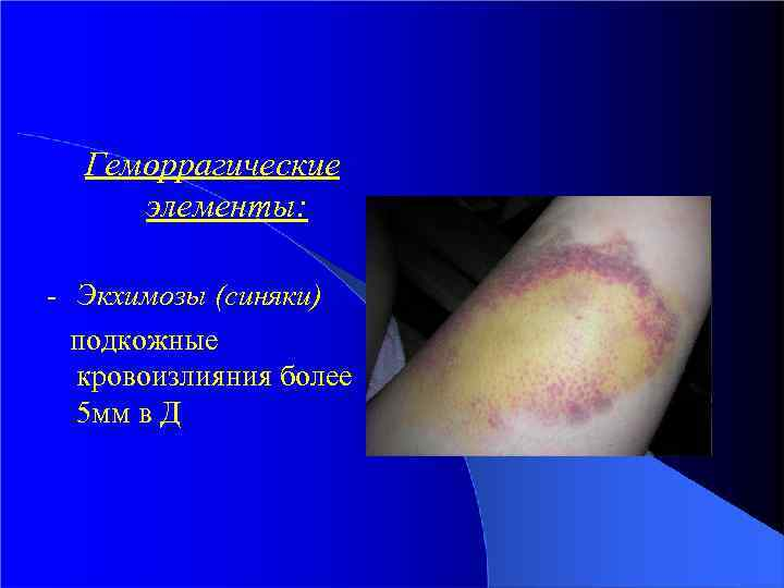 Геморрагические элементы: - Экхимозы (синяки) подкожные кровоизлияния более 5 мм в Д