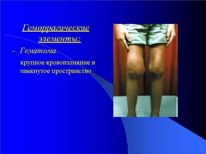Геморрагические элементы: - Гематома крупное кровоизлияние в замкнутое пространство