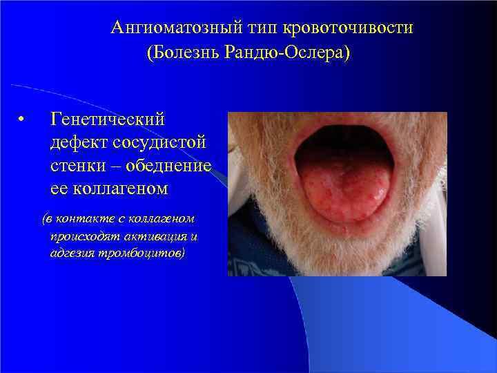 Ангиоматозный тип кровоточивости (Болезнь Рандю-Ослера) • Генетический дефект сосудистой стенки – обеднение ее коллагеном