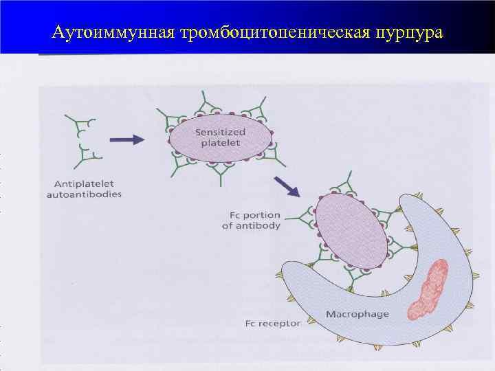 Аутоиммунная тромбоцитопеническая пурпура • • Этиология: продукция антител, тропных к собственным тромбоцитам. Разрушение меченных