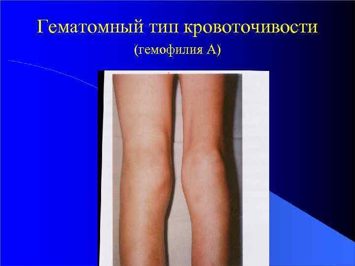 Гематомный тип кровоточивости (гемофилия А)