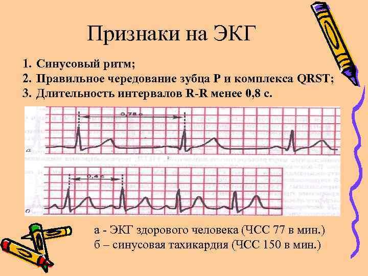Признаки на ЭКГ 1. Синусовый ритм; 2. Правильное чередование зубца Р и комплекса QRST;
