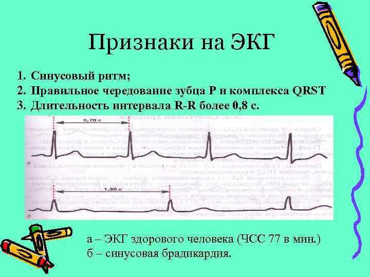 Признаки на ЭКГ 1. Синусовый ритм; 2. Правильное чередование зубца Р и комплекса QRST