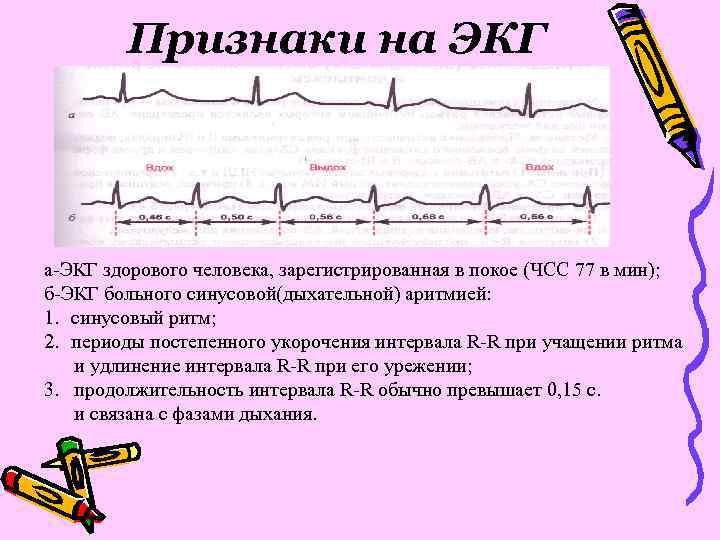 Признаки на ЭКГ а-ЭКГ здорового человека, зарегистрированная в покое (ЧСС 77 в мин); б-ЭКГ