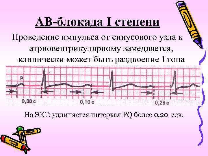 АВ-блокада I степени Проведение импульса от синусового узла к атриовентрикулярному замедляется, клинически может быть