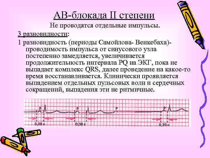 АВ-блокада II степени Не проводятся отдельные импульсы. 3 разновидности: 1 разновидность (периоды Самойлова- Венкебаха)проводимость