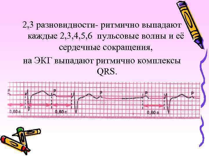 2, 3 разновидности- ритмично выпадают каждые 2, 3, 4, 5, 6 пульсовые волны и