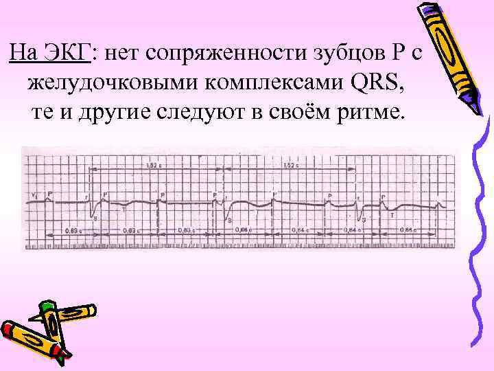 На ЭКГ: нет сопряженности зубцов Р с желудочковыми комплексами QRS, те и другие следуют