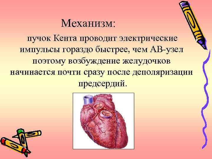 Механизм: пучок Кента проводит электрические импульсы гораздо быстрее, чем АВ-узел поэтому возбуждение желудочков начинается