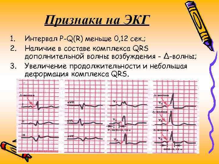 Признаки на ЭКГ 1. 2. 3. Интервал P-Q(R) меньше 0, 12 сек. ; Наличие