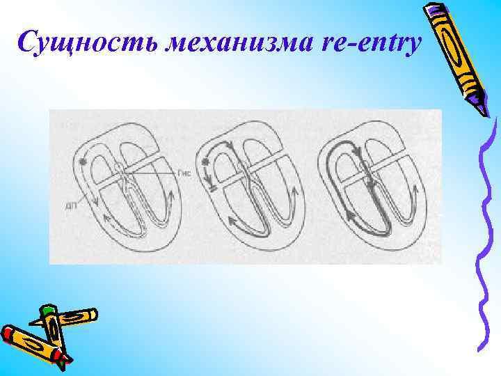 Сущность механизма re-entry