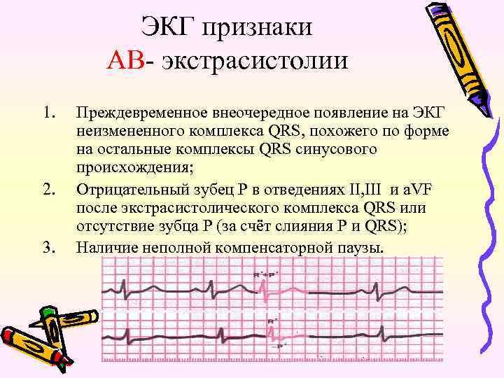 ЭКГ признаки АВ- экстрасистолии 1. 2. 3. Преждевременное внеочередное появление на ЭКГ неизмененного комплекса