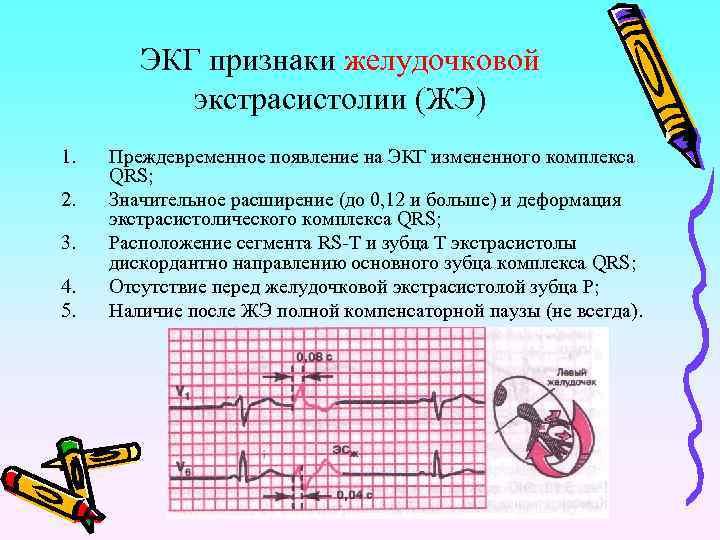 ЭКГ признаки желудочковой экстрасистолии (ЖЭ) 1. 2. 3. 4. 5. Преждевременное появление на ЭКГ