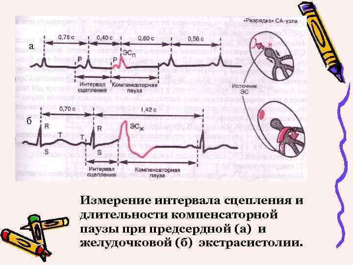 а б Измерение интервала сцепления и длительности компенсаторной паузы при предсердной (а) и желудочковой