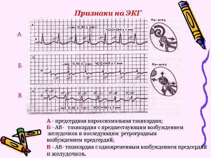 Признаки на ЭКГ А Б В А - предсердная пароксизмальная тахикардия; Б - АВ-
