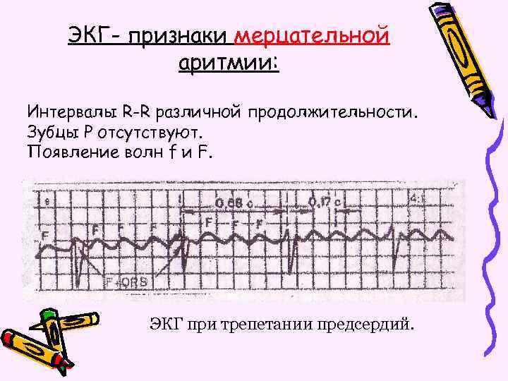 ЭКГ- признаки мерцательной аритмии: Интервалы R-R различной продолжительности. Зубцы Р отсутствуют. Появление волн f