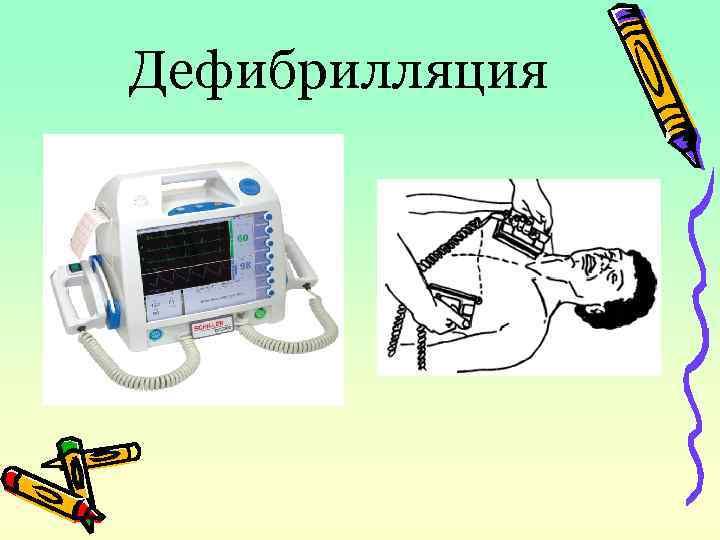 Дефибрилляция