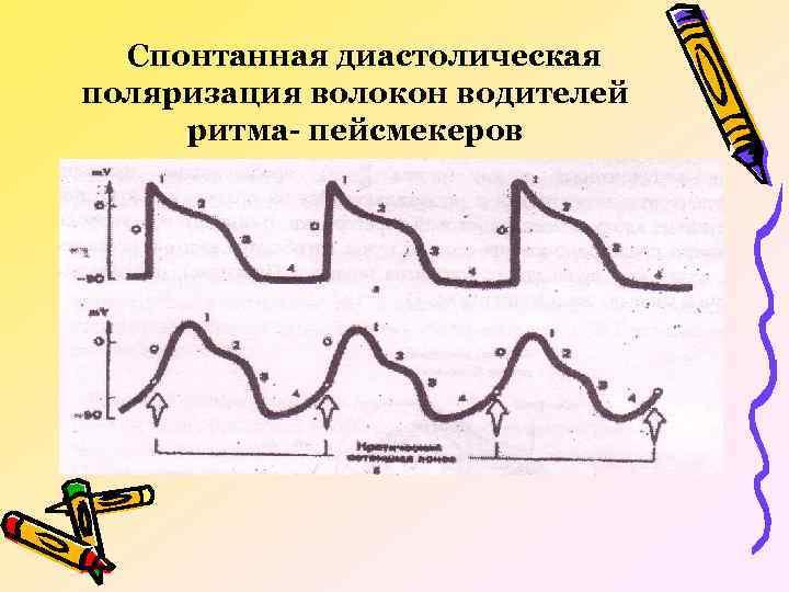 Спонтанная диастолическая поляризация волокон водителей ритма- пейсмекеров