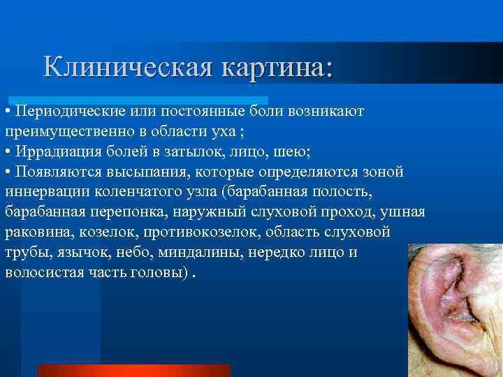 Клиническая картина: • Периодические или постоянные боли возникают преимущественно в области уха ; •
