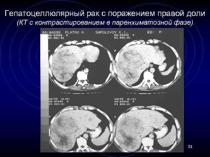 Гепатоцеллюлярный рак с поражением правой доли (КТ с контрастированием в паренхиматозной фазе) 51