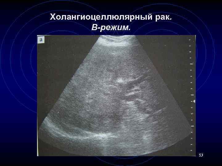 Холангиоцеллюлярный рак. В-режим. 53
