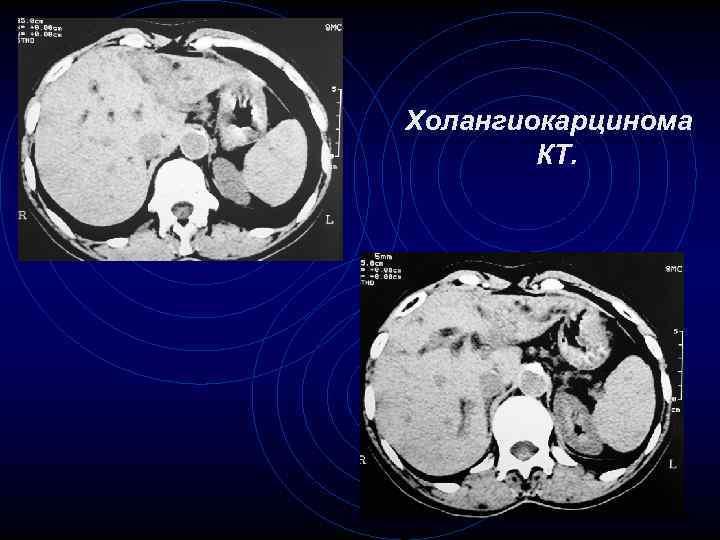 Холангиокарцинома КТ. 55