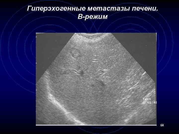 нашем обзоре селезенка при циррозе на узи фото мире существуют миллионы