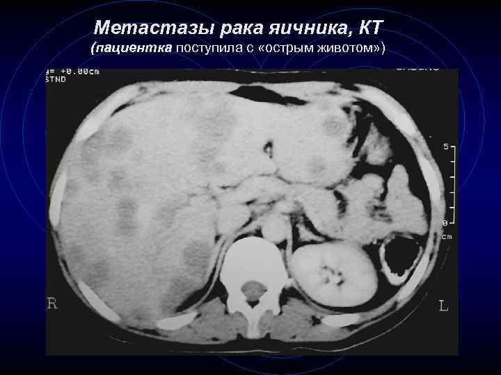 Метастазы рака яичника, КТ (пациентка поступила с «острым животом» ) 65