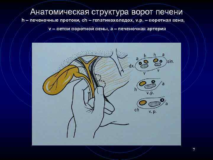 Анатомическая структура ворот печени h – печеночные протоки, ch – гепатикохоледох, v. p. –