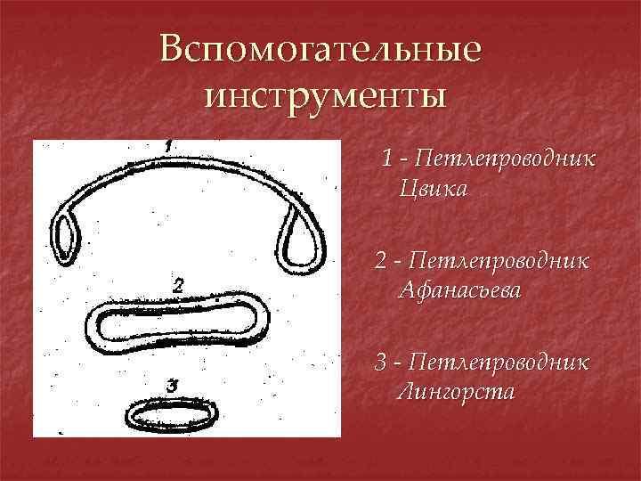 Вспомогательные инструменты 1 - Петлепроводник Цвика 2 - Петлепроводник Афанасьева 3 - Петлепроводник Лингорста