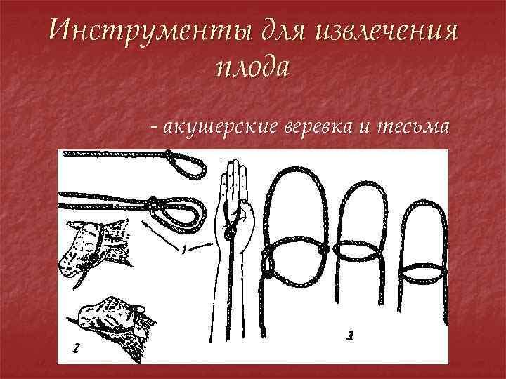 Инструменты для извлечения плода - акушерские веревка и тесьма