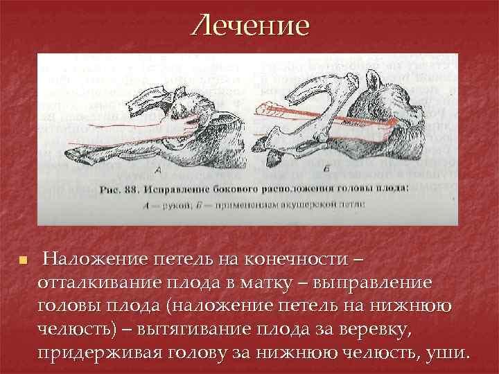 Лечение n Наложение петель на конечности – отталкивание плода в матку – выправление головы