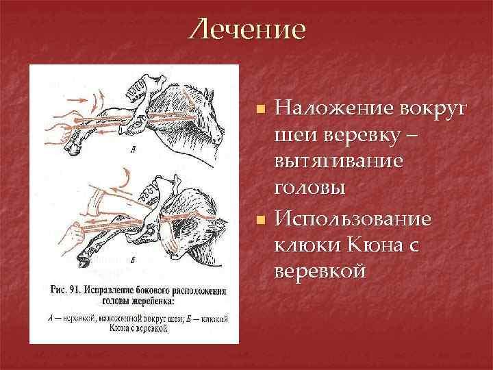 Лечение n n Наложение вокруг шеи веревку – вытягивание головы Использование клюки Кюна с