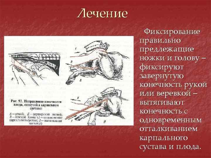 Лечение Фиксирование правильно предлежащие ножки и голову – фиксируют завернутую конечность рукой или веревкой