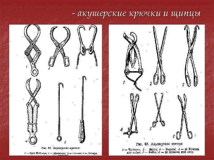 - акушерские крючки и щипцы
