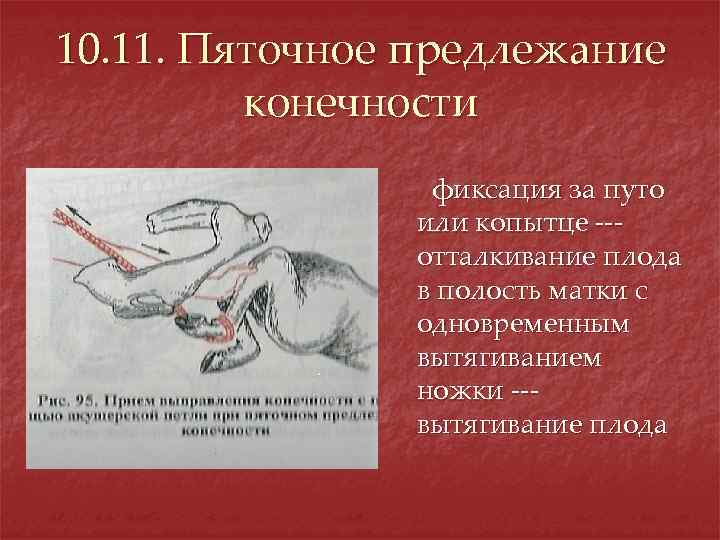 10. 11. Пяточное предлежание конечности фиксация за путо или копытце --отталкивание плода в полость