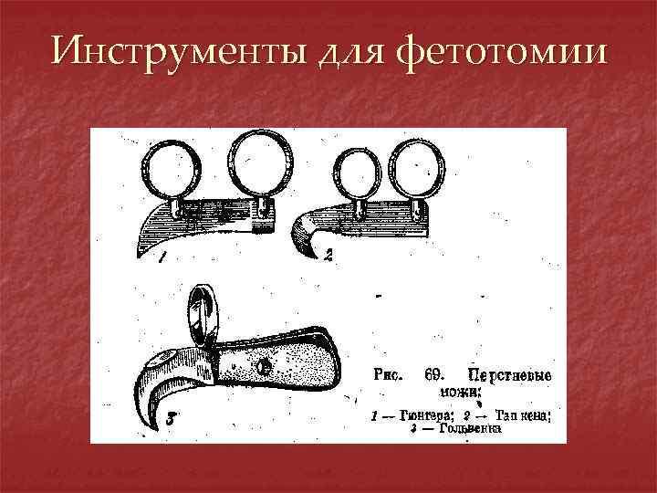 Инструменты для фетотомии