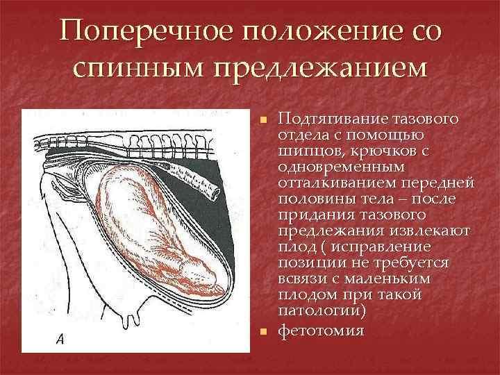 Поперечное положение со спинным предлежанием n n Подтягивание тазового отдела с помощью шипцов, крючков