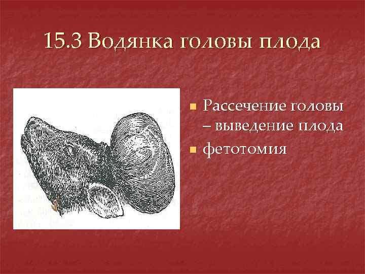 15. 3 Водянка головы плода n n Рассечение головы – выведение плода фетотомия