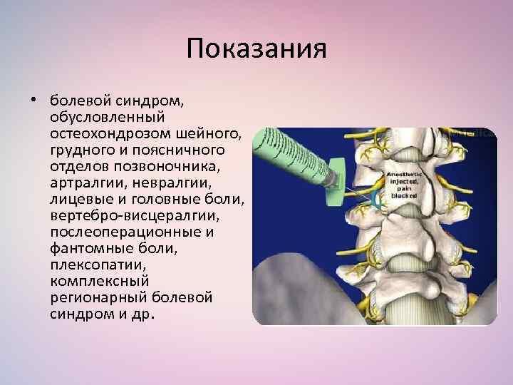 Шейный остеохондроз позвоночника болевой синдром фото