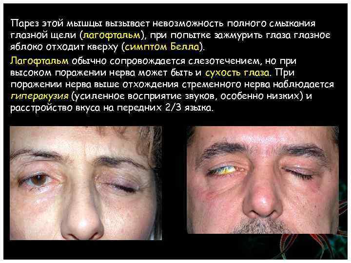 Парез этой мышцы вызывает невозможность полного смыкания глазной щели (лагофтальм), при попытке зажмурить глаза