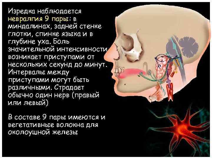 Изредка наблюдается невралгия 9 пары: в миндалинах, задней стенке глотки, спинке языка и в