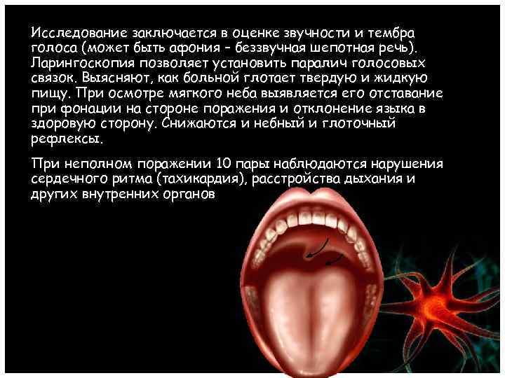 Исследование заключается в оценке звучности и тембра голоса (может быть афония – беззвучная шепотная
