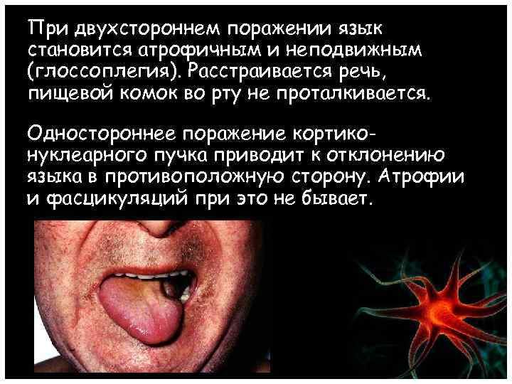 При двухстороннем поражении язык становится атрофичным и неподвижным (глоссоплегия). Расстраивается речь, пищевой комок во