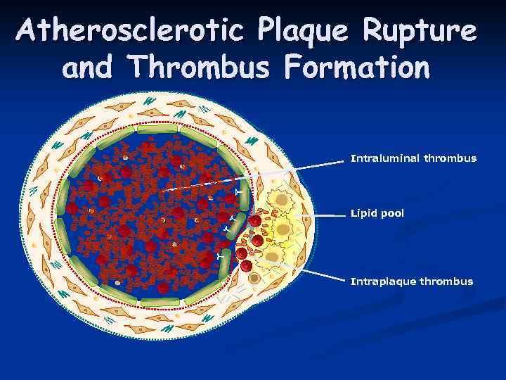 Atherosclerotic Plaque Rupture and Thrombus Formation Intraluminal thrombus Lipid pool Intraplaque thrombus