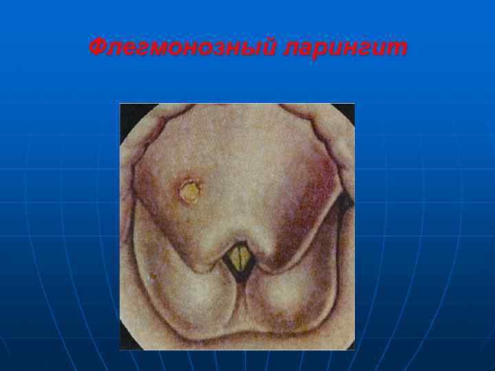 Флегмонозный ларингит