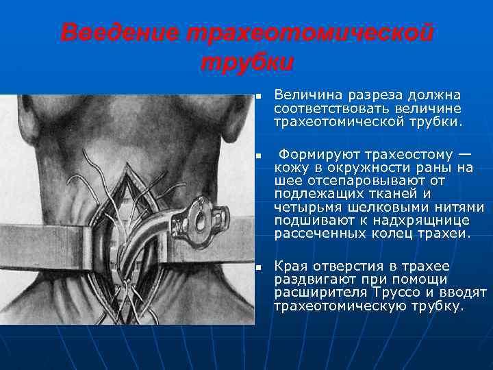 Введение трахеотомической трубки n n n Величина разреза должна соответствовать величине трахеотомической трубки. Формируют